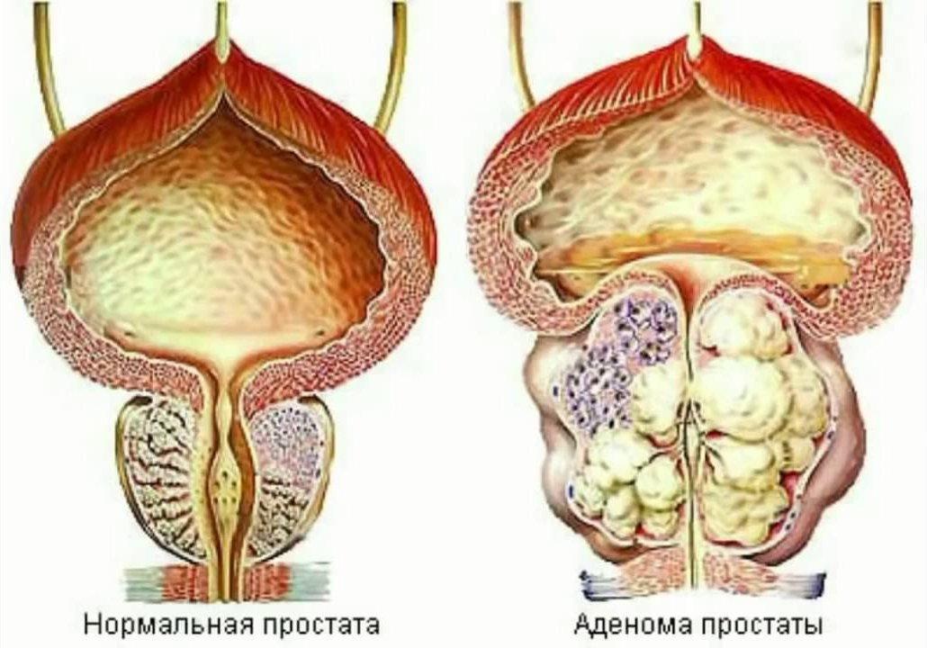 ya-konchil-v-devushku-bez-prezervativa